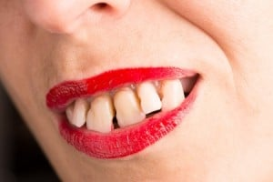 Spaced Teeth - McDermott Orthodontics - Common Orthodontic Problems