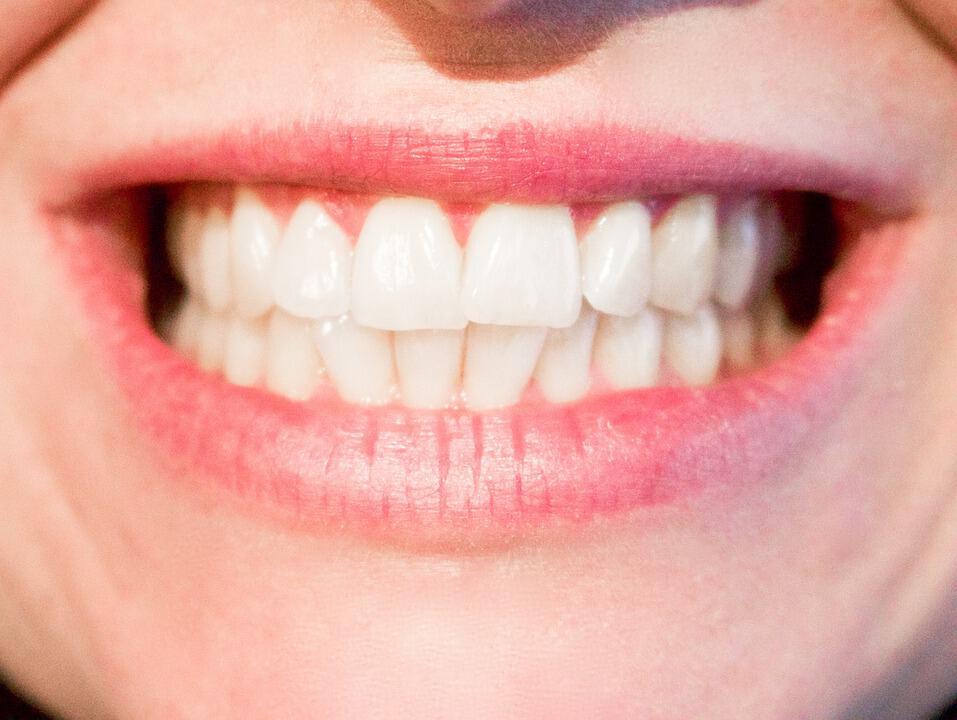 flared teeth