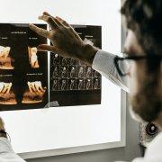 dental crown x ray